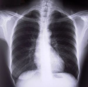 chest-xray-262068-m.jpg